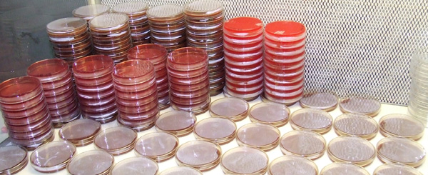Petri dishes of the Department of Microbiology, Dhaka Shishu Hospital