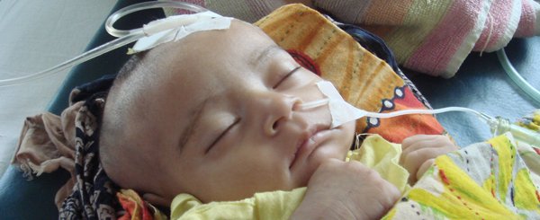 Child suffering from Pneumonia